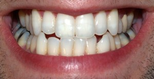 Teeth in Male Mouth