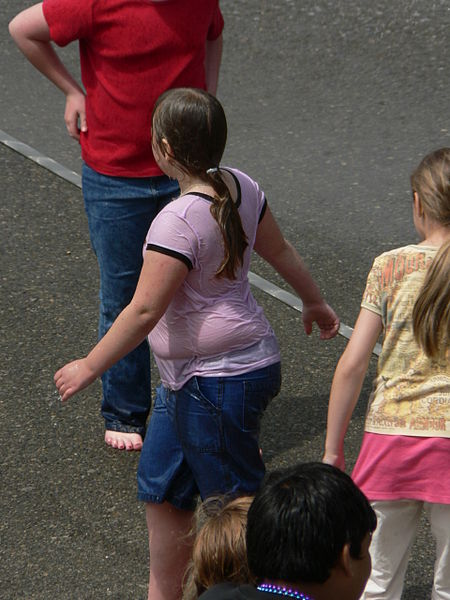 Childhood Obesity Rates Declining