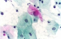 High Risk of Poor Pap Tests for Female-to-Male Transgender Patients