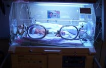 Bariatric Surgery Linked to Increased Risk of Premature Birth and Low Birth Weight