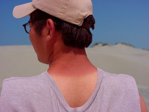 Sunburn on Neck