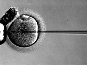 ICSI Sperm Injection into Oocyte