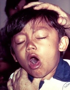 Boy with Pertussis