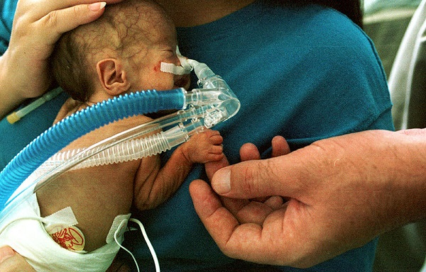 Premature Infant with CPAP