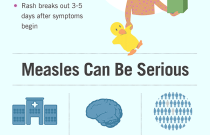 Measles: Not Just a Little Rash and Protecting Your Child Infographics