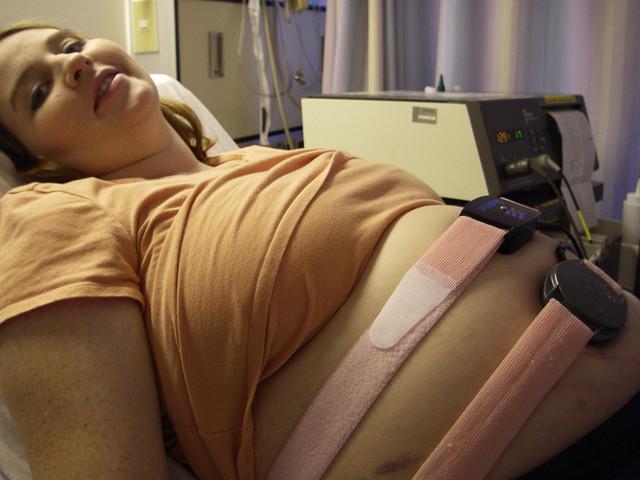 Non-stress Fetal Monitoring with Gestational Diabetes