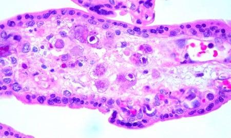 Cytomegalovirus (CMV) Placentitis