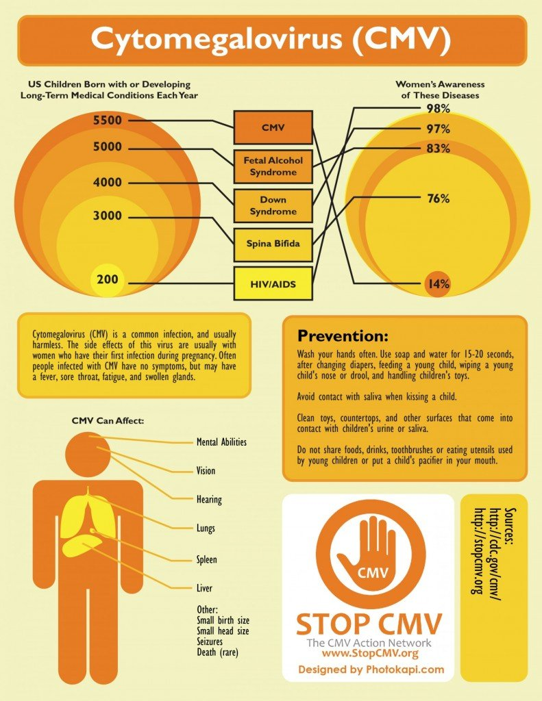 Cytomegalovirus (CMV) Infographic
